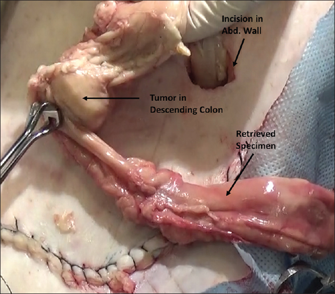 Figure 11: Retrieval of specimen through a small incision, after deflating pneumoperitoneum. Incision needs protection from contact with specimen (not shown here). The tumour is seen in the resected specimen