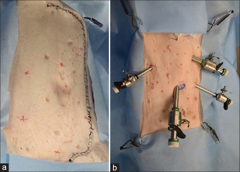 Figure 4: (a) The abdominal incision gives adequate exposure to recreate abdominal anatomy, after which it is closed airtight. (b) The incision does not interfere with port placement