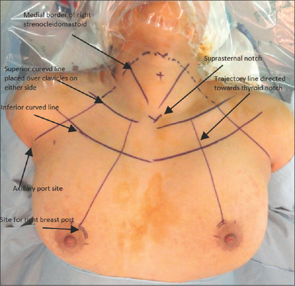 Figure 4: Skin markings for flap dissection, port placement with important anatomical landmarks