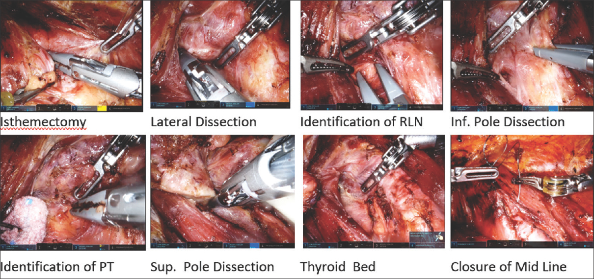 Figure 9: Endoscopic view showing important surgical steps as described in the text