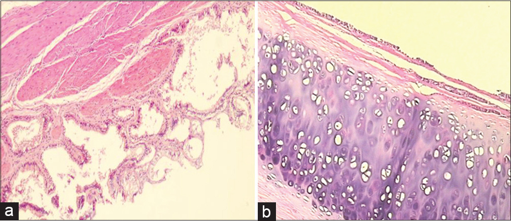 Figure 3: (a) Microscopic sections showed cystic spaces lined by ciliated pseudostratified cuboid-to-columnar cells and smooth muscle, (b) Microscopic sections showed cartilage around the cysts (H and E, ×10)