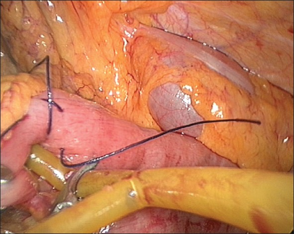 Figure 3: Insertion of T-tube in the jejunal opening