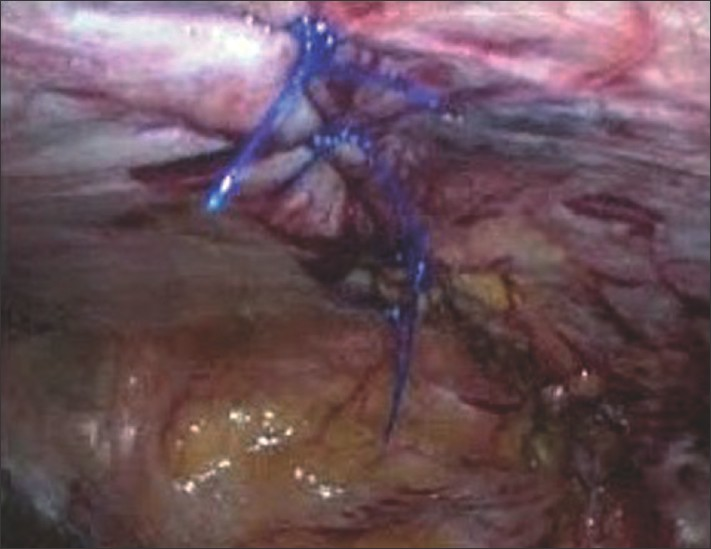 Figure 4 : Intra-operative photograph showing the completed repair with all the polypropylene knots towards the peritoneal cavity.