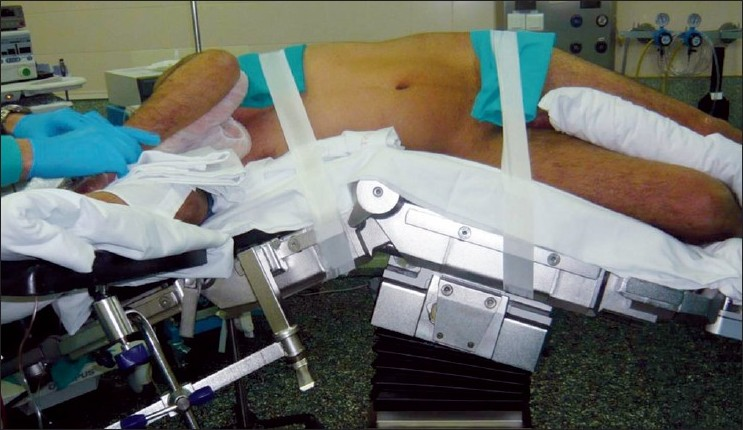 colonoscopy procedure position significantly - photo #32