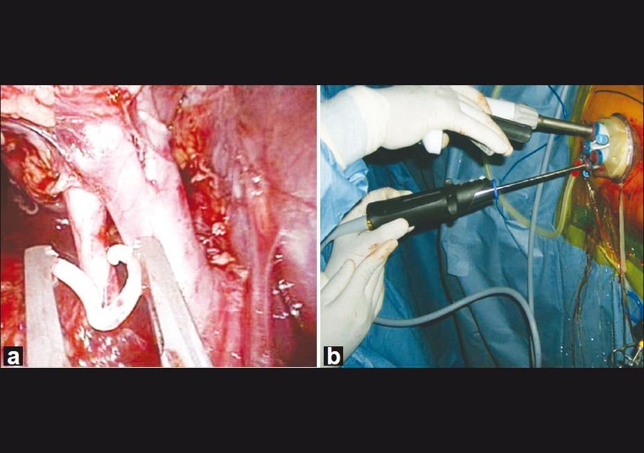 Figure 2: (a) Weck clip being applied during Right LESS donor Nephrectomy, (b) Surface view of LESS donor