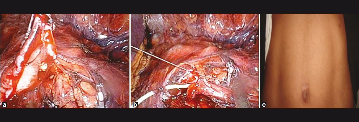 Figure 3: (a) Renal pelvis dissected by LESS approach for LESS pyeloplasty (b) LESS pyeloplasty (c) Post-operative scar of LESS pyeloplasty