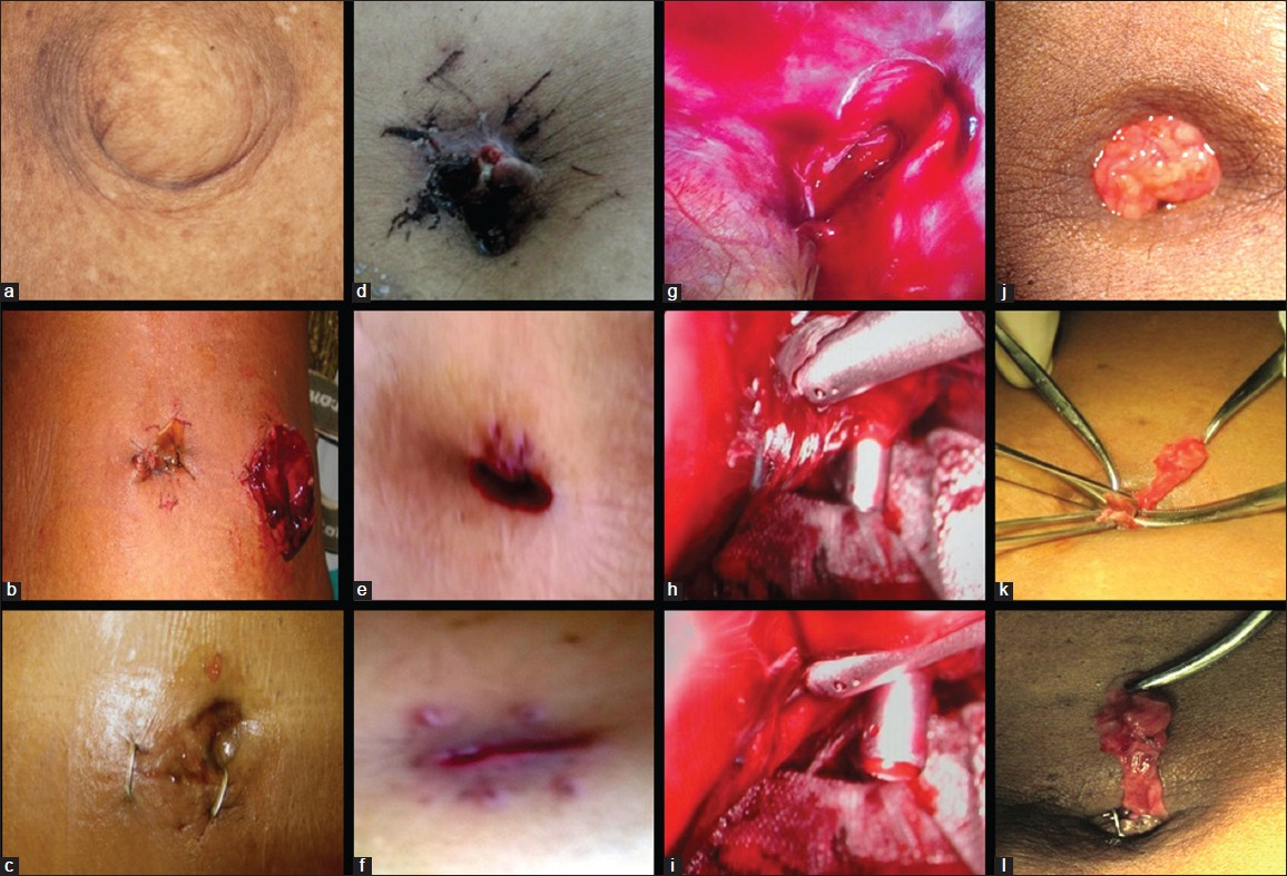 Image Gallery infected stitches after laparoscopy