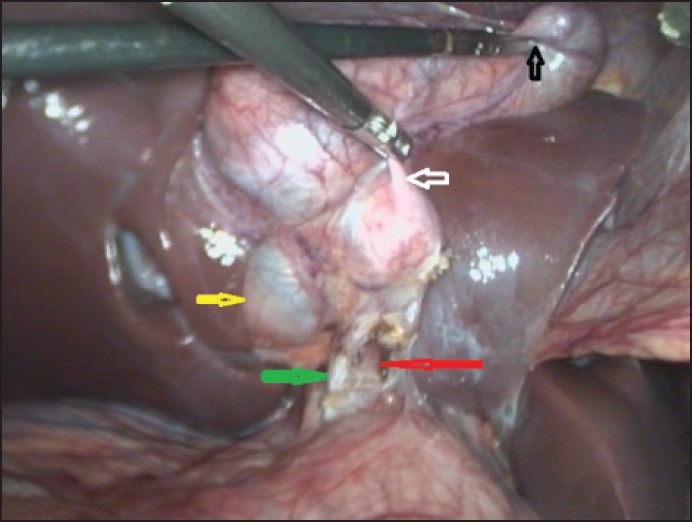 Figure 2: Anatomy after initial dissection with traction on fundus (black arrow) and Hartman's pouch (white arrow) of 1st lobe, showing partially intrahepatic 2<sup>nd</sup> lobe (yellow arrow) and solitary cystic duct (green arrow) and artery (red arrow)