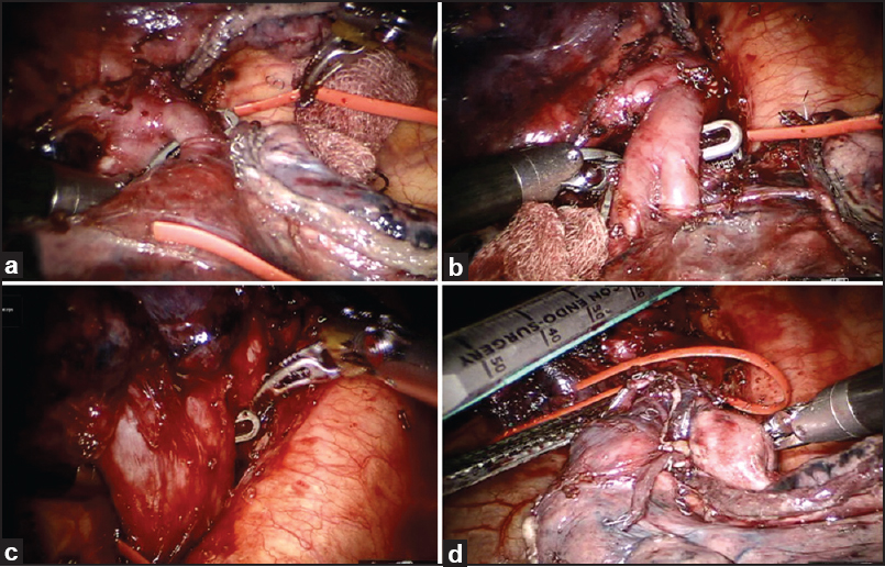 Figure 3: Intraoperative view of an anatomical left lower lobectomy. (a) The superior segmental branch to left lower lobe being dissected and looped. (b) Basilar Trunk to left lower lobe dissected and being looped. (c) Inferior Pulmonary vein dissected. (d) Left lower lobe bronchus being ready for division