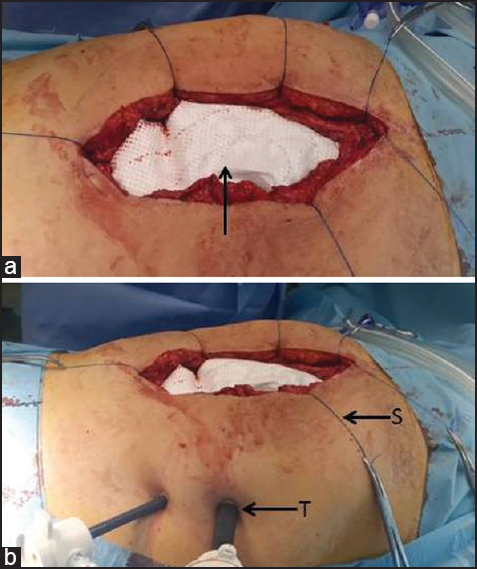 Figure 2: (a) The abdomen was opened by laparotomy and hernia sac dissected. Dual mesh was implanted (b) The trocars were inserted in an open techniques (T) and transfixation sutures were placed (S)