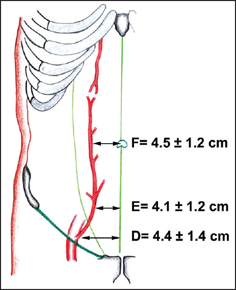 Clinical Anatomy Of The Inferior Epigastric Artery With Special