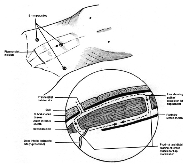 A Novel Method Of Minimally Invasive Rectus Abdominis Muscle Flap