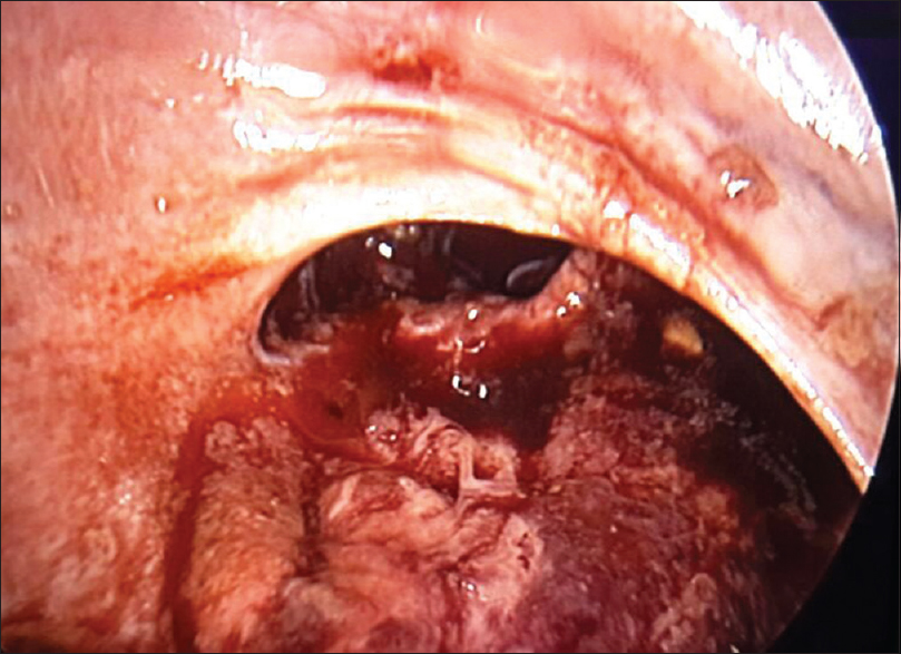 Figure 2: Laparoscopic view showing the tear in the rectum at the level of the peritoneal reflection along with the omentum that was plugging it