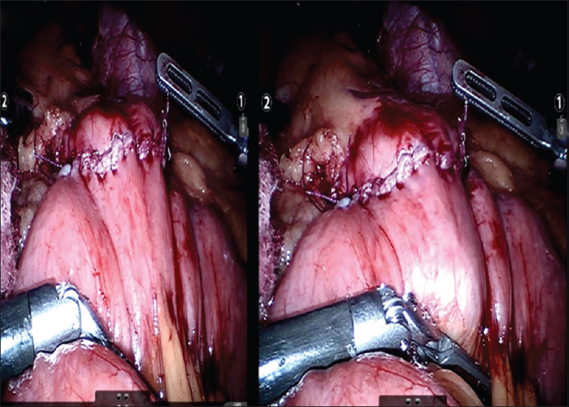 Figure 12: Closure of gastrostomy enterotomy defect
