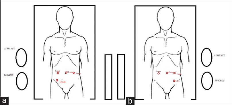 Figure 3: Placement of trocars and surgical team in standard laparoscopic anterior resection (a) and laparoscopic anterior resection with situs inversus totalis (b)