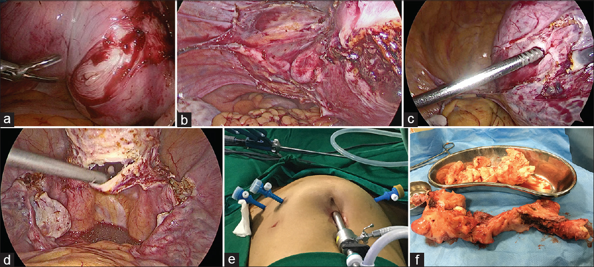 Figure 3: (a) Intra-operative myomectomy being performed before hysterectomy in a case with large right lower uterine myoma extending into broad ligament. (b) 30° degree, 10 mm telescope camera skilfully rotated to visualize the left uterine artery from the left lateral aspect. (c) Myoma screw being used for manipulation and cranial traction during laparoscopic hysterectomy. (d) Vaginal vault opened posteriorly without any colpotomiser. This is then extended both sides to severe cervix from vault. (e) Port placement; 10 mm primary port at upper border of umbilicus, two 5 mm ports on the left side and one 5 mm port on the right side of abdomen. (f) Morcellated specimen depicting the technique to convert a globular specimen to longitudinal one