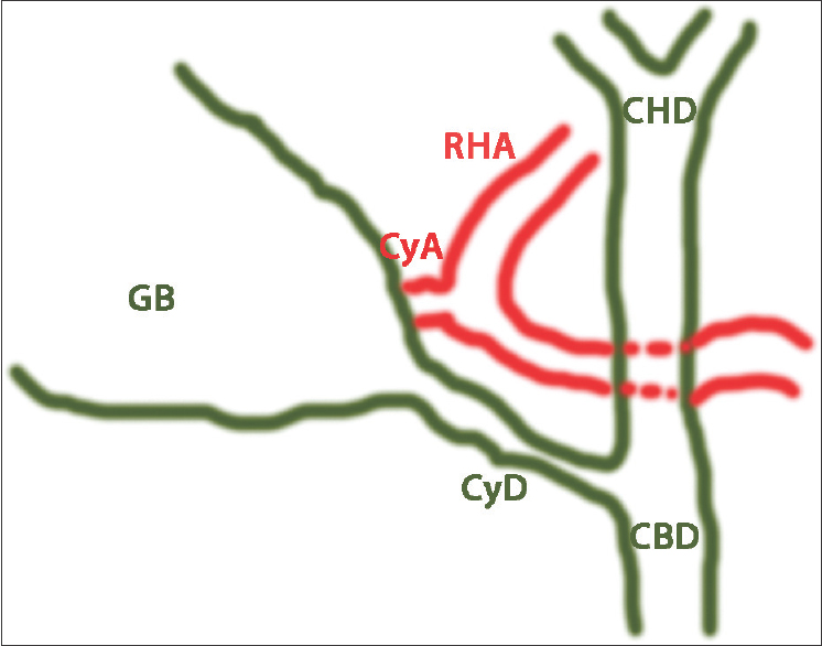 Figure 2: Schematic view of Figure 1. Relevant structures of the hepatic hilum and Calot's triangle are depicted. CyA: Cystic artery, CyD: Cystic duct, CBD: Common biliary duct, CHD: Common hepatic duct, GB: Gallbladder, RHA: Right hepatic artery
