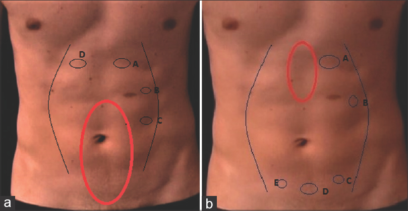 Figure 1: Port positions. (a) for umbilical and infraumbilical hernia; (b) for supraumbilical hernia