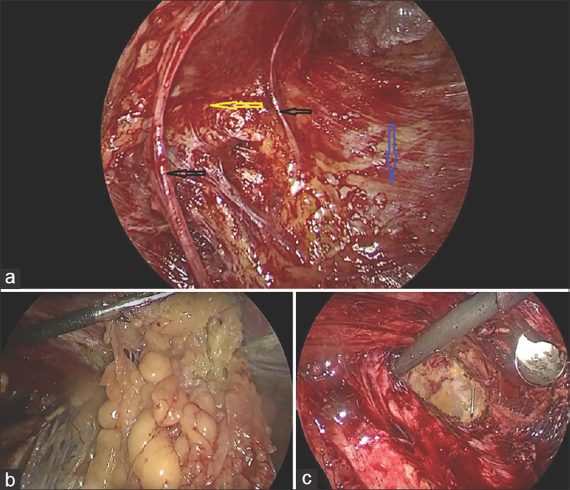 Figure 2: (a) Creation of retro-rectus space. Note the neurovascular bundles - black arrow, Linea Semilunaris - yellow arrow, posterior rectus sheath - blue arrow (b) intraperitoneal dissection and taking down hernia contents (c) crossing the midline. Note the falciform pad of fat