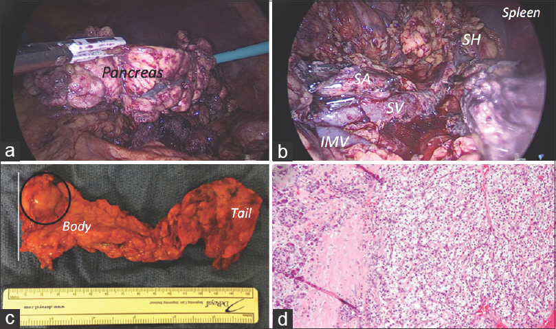 Figure 2: (a) Laparoscopic view of fully mobilised and detached pancreatic specimen; (b) Final inspection of pancreatic bed with preserved splenic vessels (SA: Splenic artery, SV: Splenic vein, IMV: Inferior mesenteric vein, SH: Splenic hilum); (c) Macroscopic view of 15 cm long specimen (circle: metastatic RCC; line: resection margin; (d) Metastatic clear cell type renal cell carcinoma on the right (normal pancreatic tissue on the left) (×10)