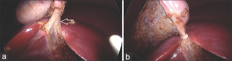 Figure 2: (a) Cystic duct thinned out and entering the gall bladder fundus (arrow); (b) cystic duct clipped