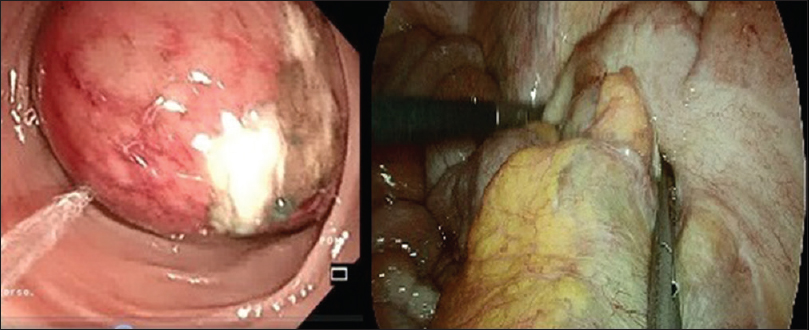 Figure 2: Endoscopic partial reduction of the intussusception with evidence of ischaemic damage of the mucosa and intraoperative findings at laparoscopy