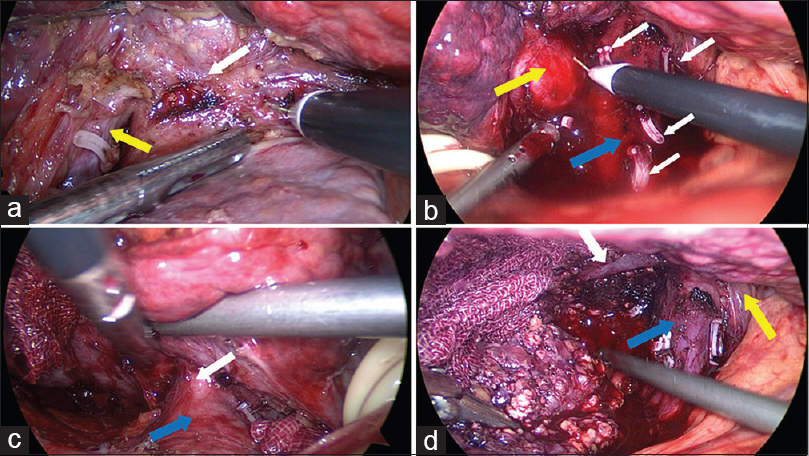 Figure 3: Single total caudate resection. (a) Dividing the upper side of Spiegel (SP) lobe. White arrow: Short hepatic vein; Yellow arrow: Portal vein. (b) Anatomy of paracaval portion. White arrow: Short hepatic vein; Blue arrow: vena cava. Yellow arrow: Paracaval portion. (c) Anatomy of caudate process. White arrow: Short hepatic vein; Blue arrow: Vena cava. (d) Removing the specimen. White arrow: Right hepatic vein; Blue arrow: Vena cava; Yellow arrow: Left hepatic vein