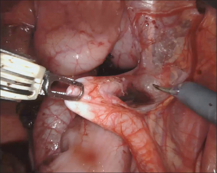 Figure 4: Intraoperative image of dissection of the ureter