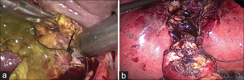 Figure 2: Management of cystic duct stump/gallbladder remnant – (a): Endoloop application after circumferential dissection of cystic duct; (b): Laparoscopic subtotal cholecystectomy completed by suturing of the gallbladder remnant